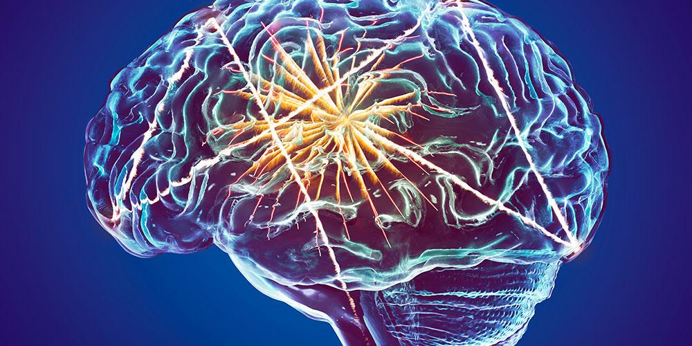 Teleneurologia: uma realidade próxima dos médicos